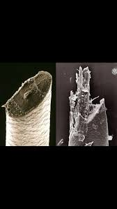 electric shaver ingrown hair razor vs electric shaver interestingasfuck