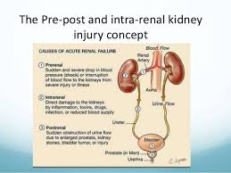 Klotho as a potential biomarker and therapy for acute kidney injury