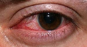 eye pain from light eye pain discharge and redness premier care