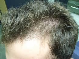 the hair centre hair loss blog