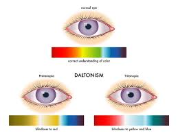 Yellow Red Color Blindness Information About Color Blindness With Major Causes And Symptoms