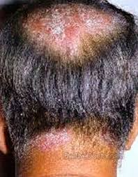 light treatment for scalp psoriasis scalp psoriasis pictures treatment symptoms home remedies cure