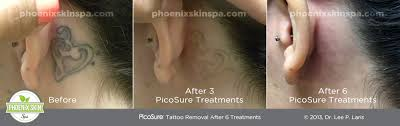 picosure tattoo removal u2013 phoenix skin spa
