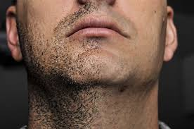it looks like a simple ingrown hair within his chest ingrown hair causes treatment prevention skinpractice