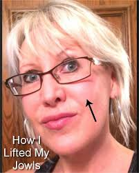 hairstyle for sagging jawline no more jowls i was horrified when i first saw my jowls in a