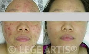 light therapy for acne scars acne laser treatment toronto lege artis