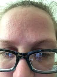 allergic reaction to neutrogena makeup remover wipes mugeek