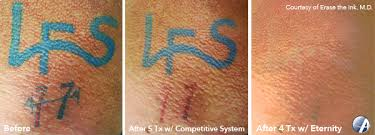 baltimore tattoo removal trinity laser tattoo removal