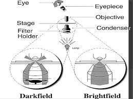 dark field microscopy dark field microscopy 1 by ehtisham ul haq