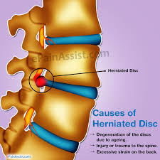 herniated disc guide to its causes symptoms and treatment