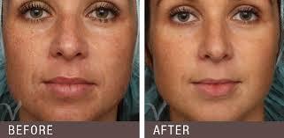 Light Therapy For Skin Portland Laser Skin Treatments Vanderveer Center