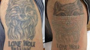 boom in tattoo removal businesses