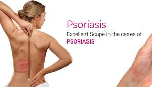psoriasis treatment psoriasis treatment in hyderabad barbie skin and laser clinic