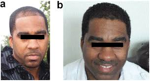 african american hair transplant african american hair loss what can be done