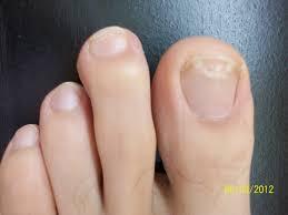 what is toenail fungus namibiauraniuminstitute com