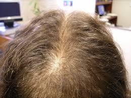 hair loss treatment edmonton men u0026 women laser hair rejuvenation