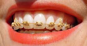 five interesting facts about braces a template