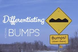 sleek and pubic hair and lifestyle and ingrown hairs differentiating bumps renee cotter md gynecologists