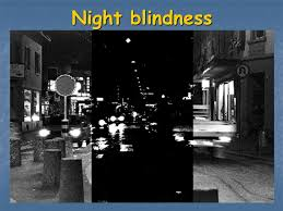 What Does Night Blindness Mean Xerophthalmia Literaly Means U201cdry Eye U201d Ppt Video Online Download