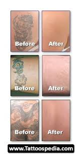 tattoo removal aftercare tattoo collections