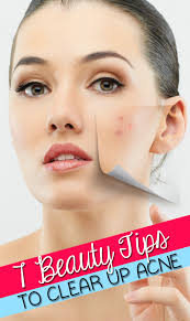 Face Mapping Pimples Clear Up Acne With These 7 Tips Hairspray And Highheels