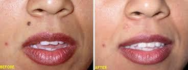 tattoo removal mole removal wart removal mumbai delhi bombay