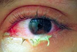 Illnesses That Cause Blindness Common Eye Problems And Infections