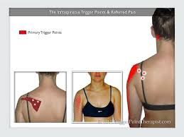 Anatomy Of The Shoulder Girdle Infraspinatus Trigger Points The Magicians Of Shoulder Pain