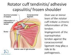 Anatomy Of Rotator Cuff Rotator Cuff Vs Frozen Shoulder How To Relief