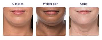 how to make a double chin look less noticable eith hair kybella carmel double chin treatments indianapolis in