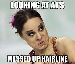 Messed Up Hairline - looking at aj s messed up hairline ugly faces meme generator