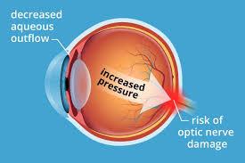 eye pain from light eye pressure pain iris blue light filter for eye protection