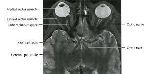 Axial Mri Brain Anatomy Dr Balaji Anvekar U0027s Neuroradiology Cases Cranial Nerves Normal