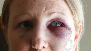 off duty cop investigated over fight that injures woman the courier