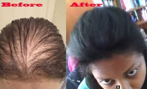 rachel thinning hair how to make thin hair look thicker using hair pieces youtube