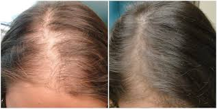 Azelaic Acid Hair Loss Cleaning Up Embarrassing Acne Scars In Fairfax Virginia And Dc
