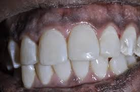 how can i get rid of white spots on my teeth ask dr spindel