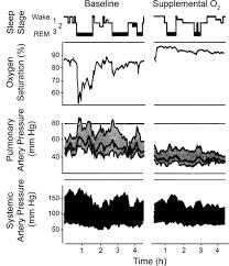 supplemental oxygen needs during sleep who benefits