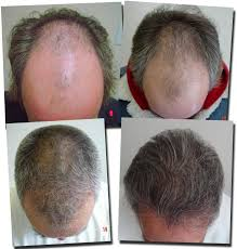 hair transplant month by month pictures hair transplant patient of dr thomas rosanelli male class 6