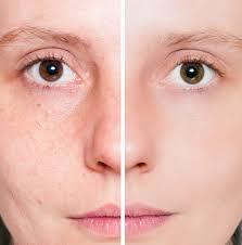 cara membuat wajah menjadi glowing secara alami 7 cara mengencangkan kulit wajah secara alami tipkecantikan com