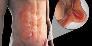 what is a peptic ulcer stomach ulcer symptoms diagnosis and