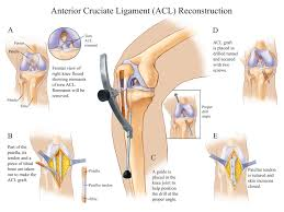 Tibiofibular Ligament Injury 231 Best Knee Surgery Recovery Images On Pinterest Knee Surgery