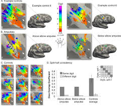 revealing the neural fingerprints of a missing hand elife