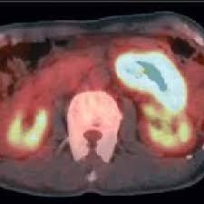 emission cuisine 3 figure 3 positron emission tomography pet there was accumulation