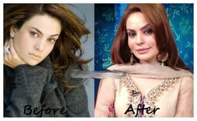 pakistani celebrities before and after plastic surgery