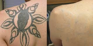 tattoo removal shoulder tattoo removal summer tips blink tattoo removal