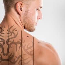 east coast laser tattoo removal 38 photos u0026 12 reviews tattoo