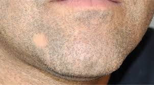 What Can I Do For My Hair Loss Small Patches Of Hair Loss On Beard Best Hair Loss 2017