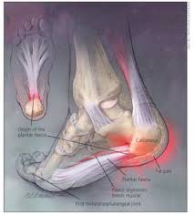 Planters Fasciitis Surgery by Managing Plantar Fasciitis And Other Heel Pain Rheumatology Network