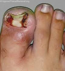 ingrown toenails what to do how to cure ingrown toenail removal